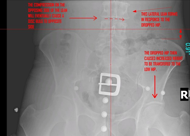 Lumbopelvic System