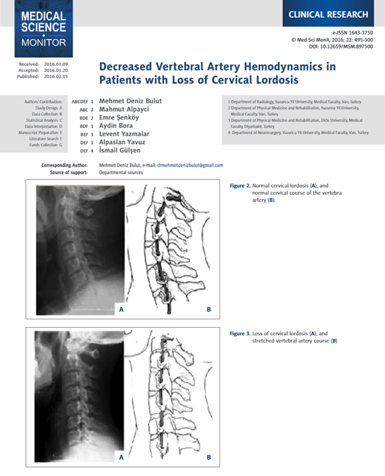 Decreased Vertebral Artery
